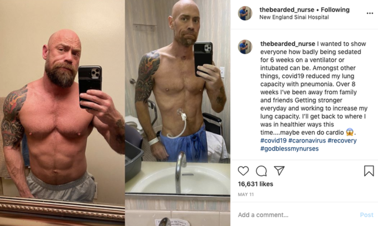 "Bodybuilder Shares Shocking ""Before And After"" Photos After Nearly Dying Of COVID-19"